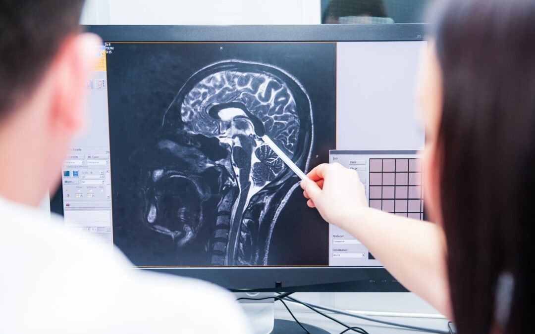 TBI and Addiction: How Brain Injuries Lead to Drug Abuse